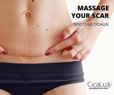 Massage your scar