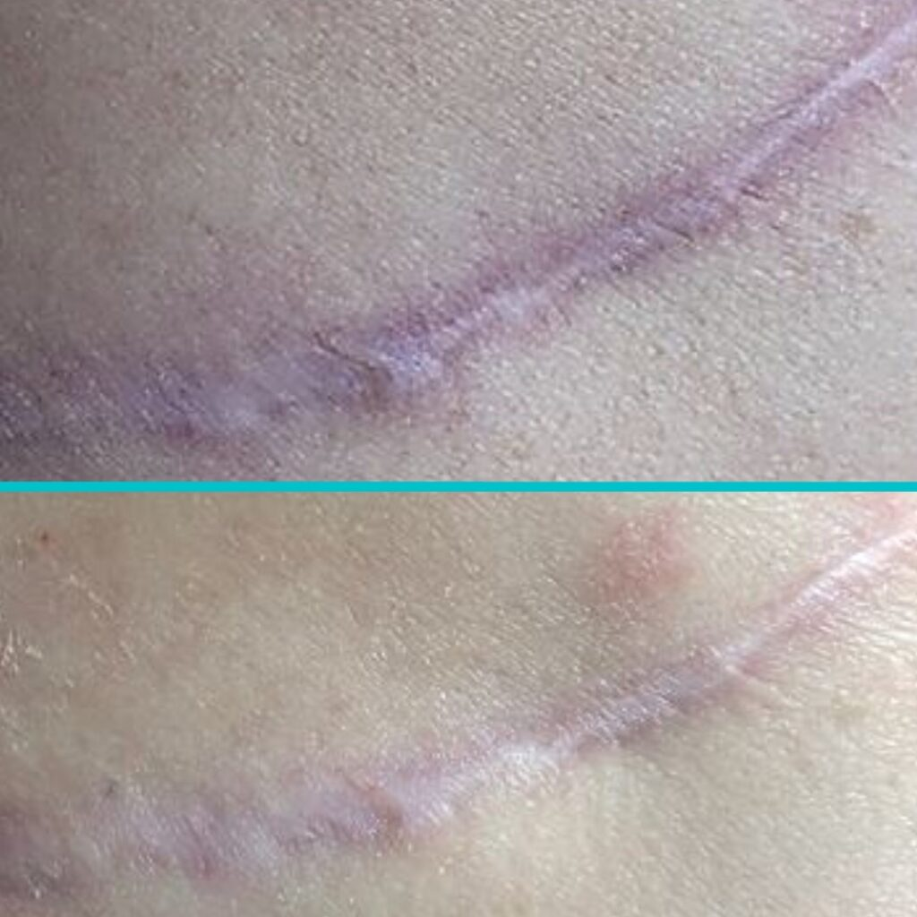 scar before and after