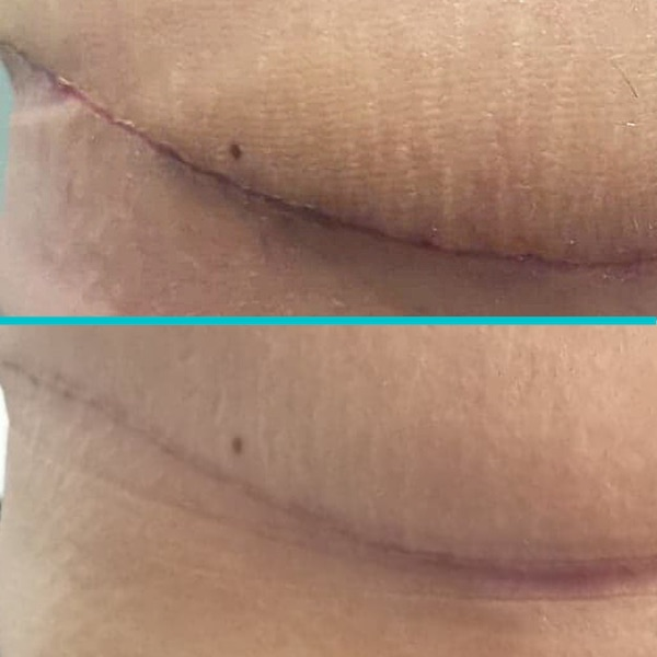 scar after and before