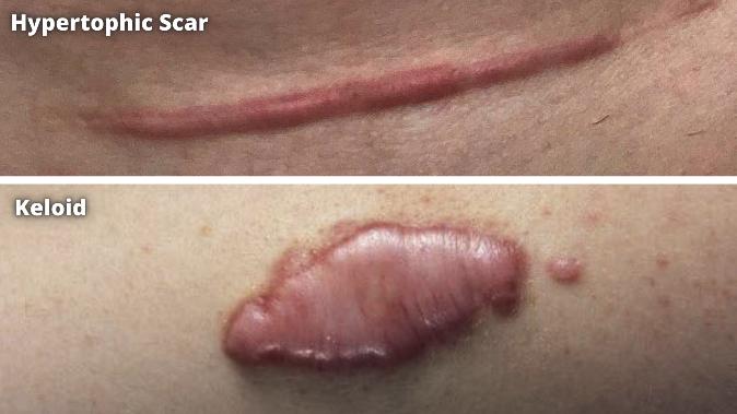 hypertrophic vs keloid scar